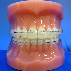 Ceramic Brackets (Clear Braces) - Braces by Henry