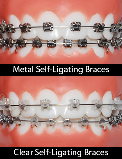 Self-Ligating Braces (Damon-style Braces) - Braces by Henry