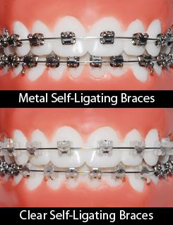 Self-Ligating Braces (Damon-style Braces) - Align Orthodontics