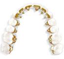 Lingual Braces (Behind the Teeth)