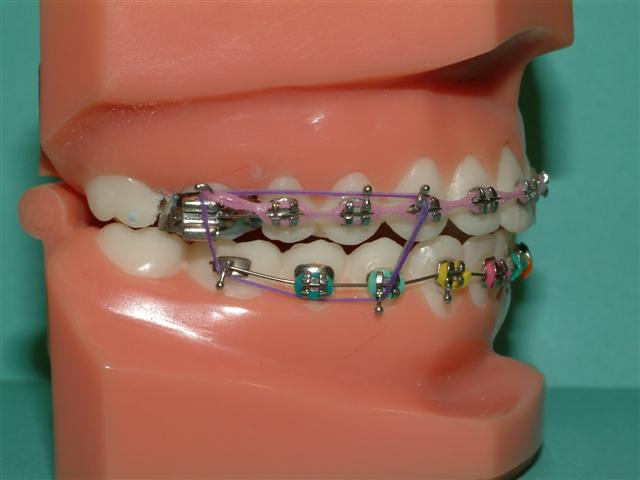 The gallery for --> Metal Braces With Colored Bands