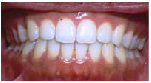 Invisalign After: Amy - Generalized Spacing