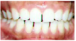 Invisalign Before: Amy - Generalized Spacing