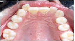 Invisalign Before: Jennifer - Crowding