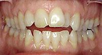 openbite teeth