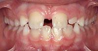 teeth spacing