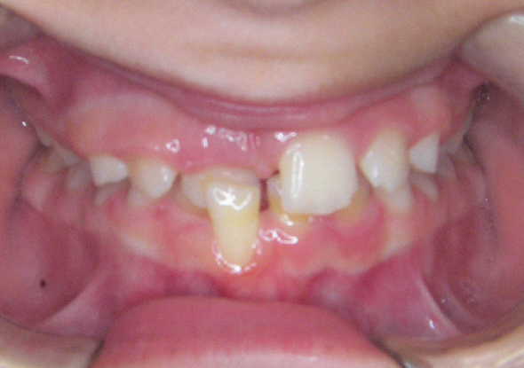 Lower tooth biting outside of the upper teeth
