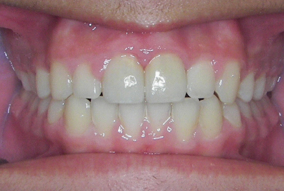 Misaligned teeth, 21 months of treatment