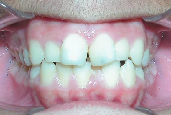 Misaligned teeth, 21 months of treatment