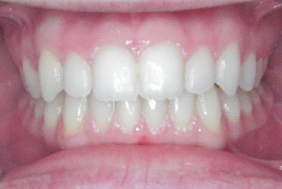 Orthodontic Patient 2