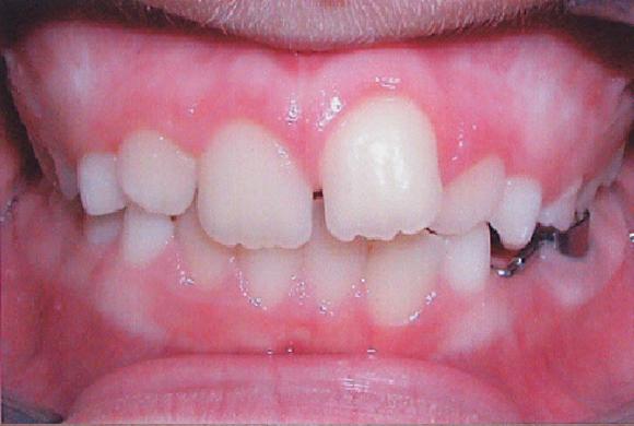 Orthodontic Patient 2