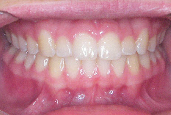 Orthodontic Patient 3