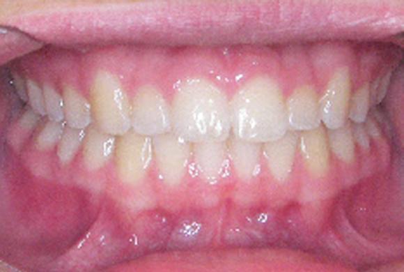 Orthodontic Patient 3