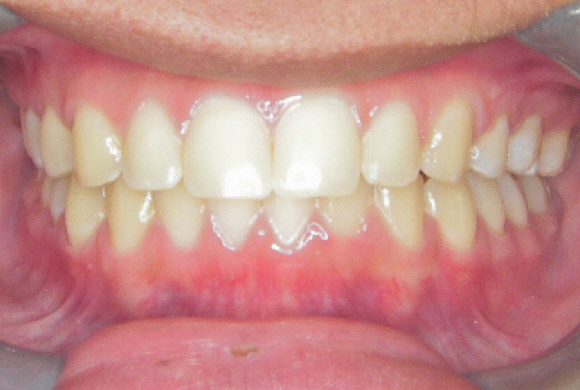 Orthodontic Patient 4