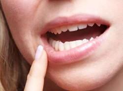 Correcting Your Bite - Align Orthodontics